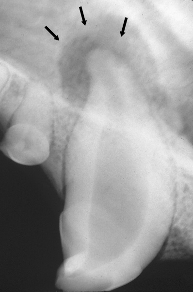 Abscessed root of a canine tooth