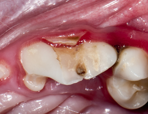 Slab fracture of the left upper fourth premolar