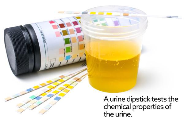 urine_dipstick_1