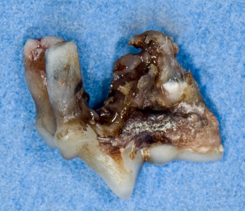 Tartar above and below the gum line on an extracted premolar tooth