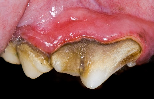Gingivitis due to plaque on tartar