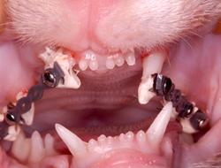 5-orthotdontics