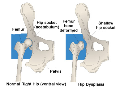 dog-hip_dysplasia