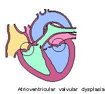 heart-atrioventricular_valvular_dysplasia