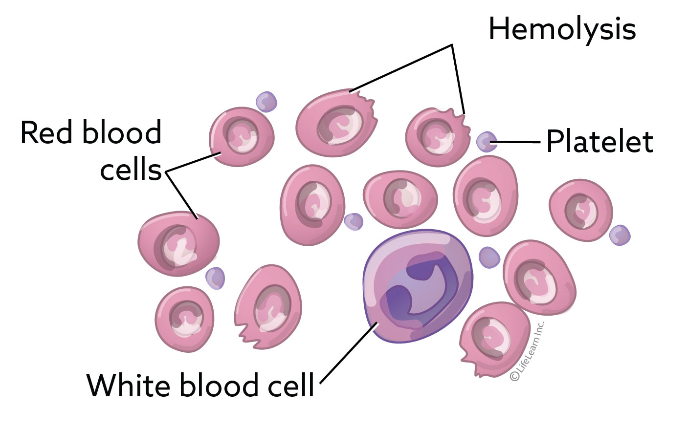 hemolysis_2018
