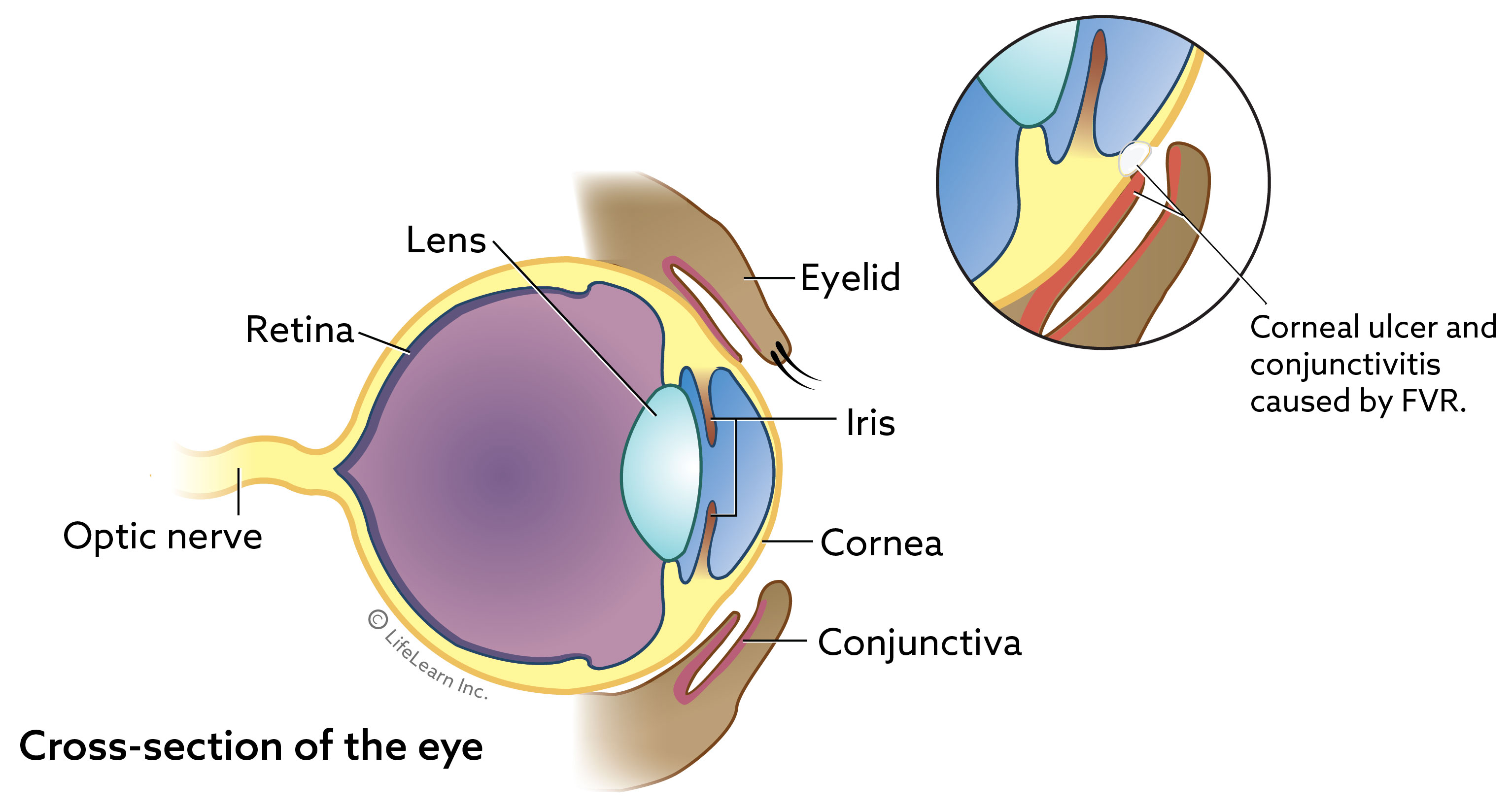 eye_basic_cross_section_ulcer_2018-01