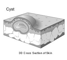 cysts-1