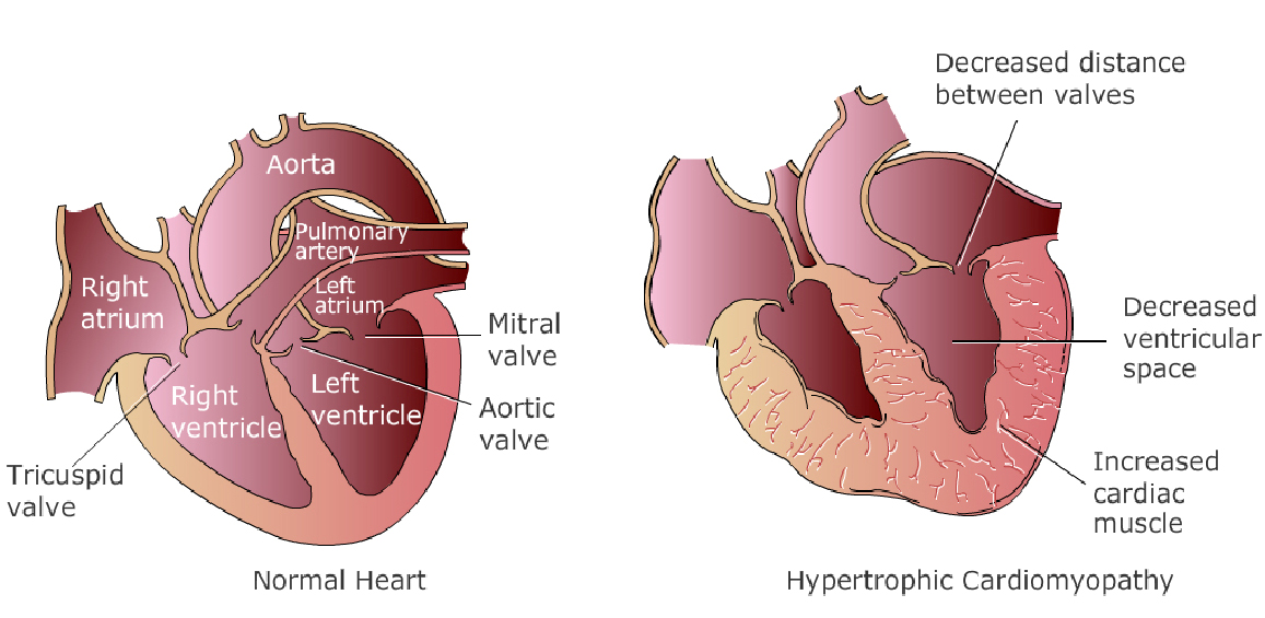 hypertension-3