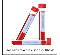 dexamethasone_suppression_tests-1