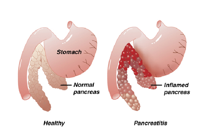 pancreatitis-1