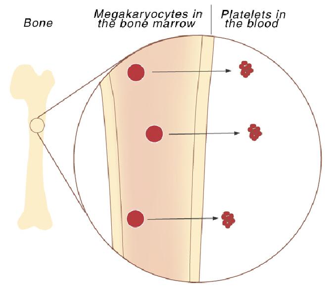 thrombocytopenia-1