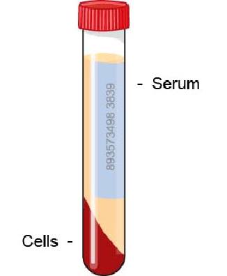 serum_protein_electrophoresis-1