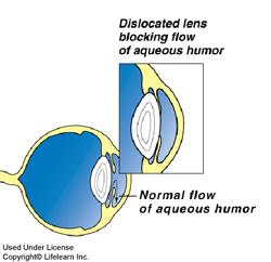 glaucoma2_2010