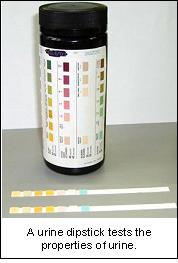 urinalysis-4