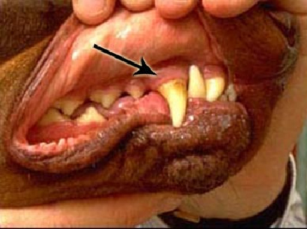 oral_tumors_melanoma-1