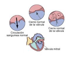 enfermedad-cardiaca-2