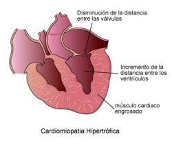cardiomiopatas_en_gatos-2