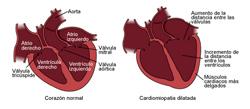 cardiomiopatas_en_gatos