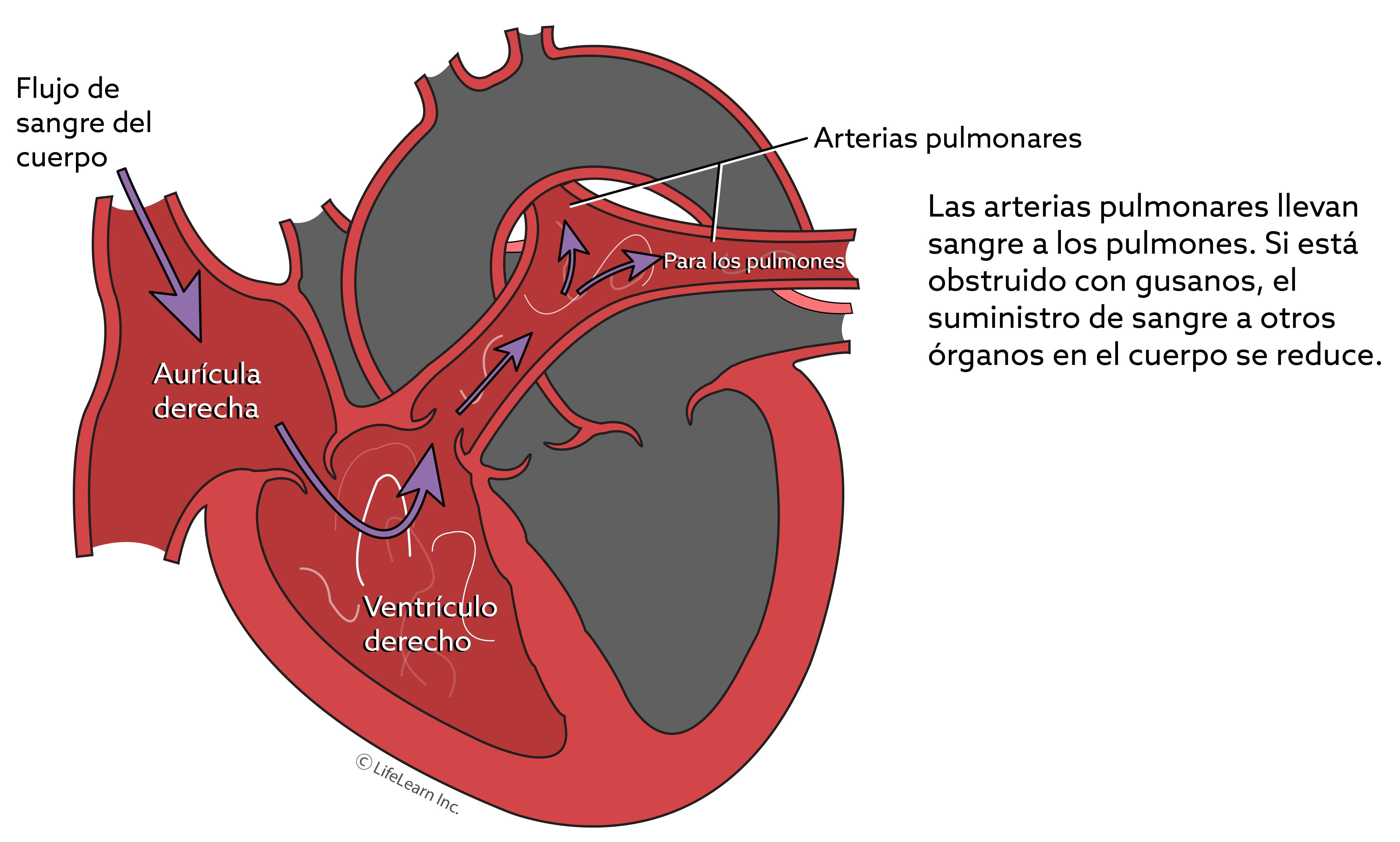 corazon-_enfermedad_de_los_gusanos_del_corazon