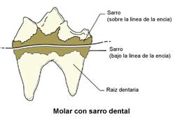 enfermedad-periodontal-2