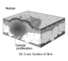 skin__cutaneous_histiocytoma-1