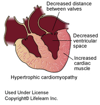 hypertrophic_cardiomyopathy1
