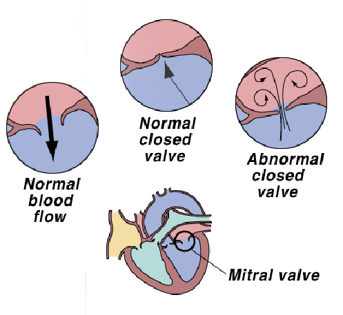 heart2_-_mitral_valve_disease-1
