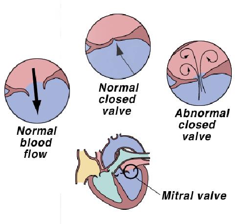 heart2_-_mitral_valve_disease-1