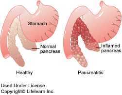 pancreatitis_2009