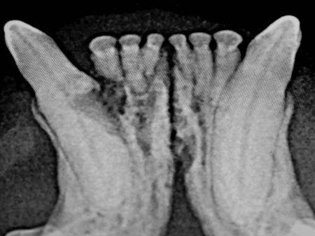 X-ray showing a significant tooth resorption of the incisor and canine necessitating extractions