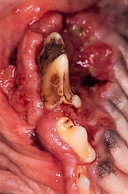 Fibrosarcoma upper jaw