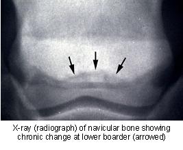 navicular_syndrome-2