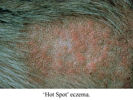 hot spot eczema