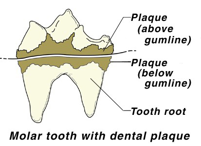 molar tooth with dental plaque