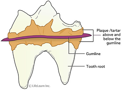 tooth-plaque_updated2017_resized