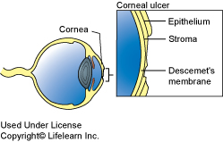 corneal_ulcer_2009