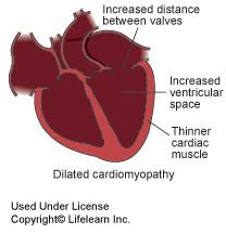 dilated_cardiomyopathy1