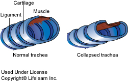 tracheal_collapse_2009