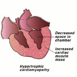 hyperthyroidism-2