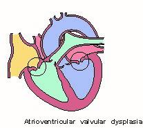 av_valve_dysplasia