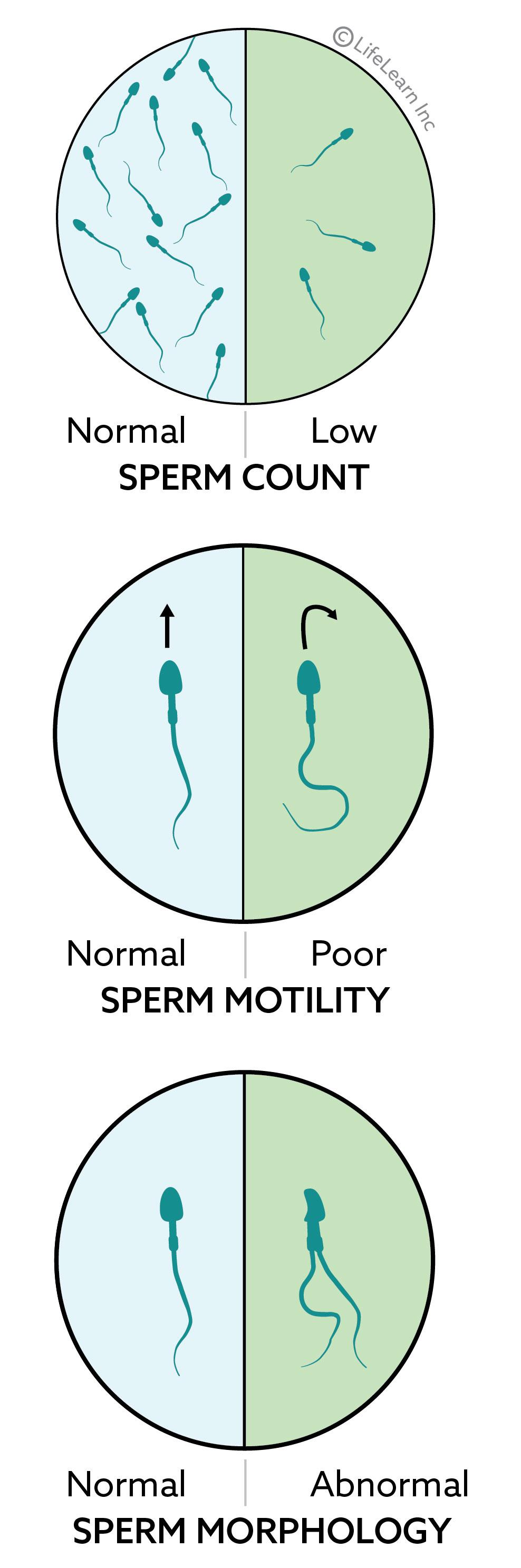 sperm_abnormalities_2018-01