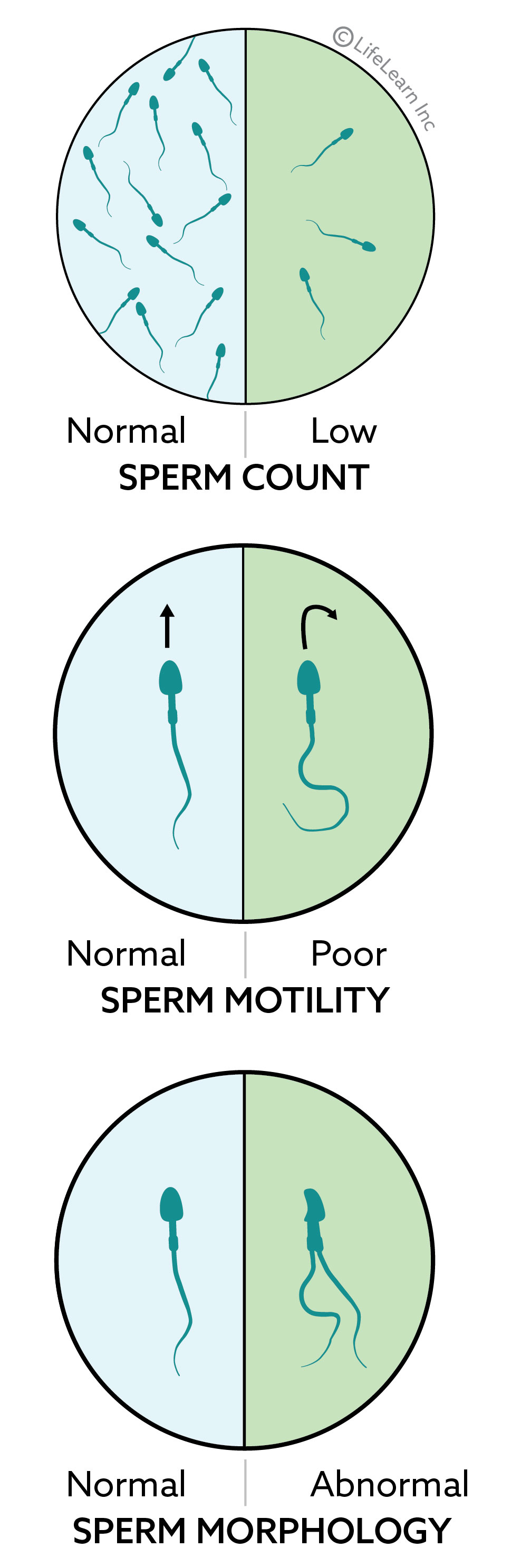 sperm_abnormalities_2018-01