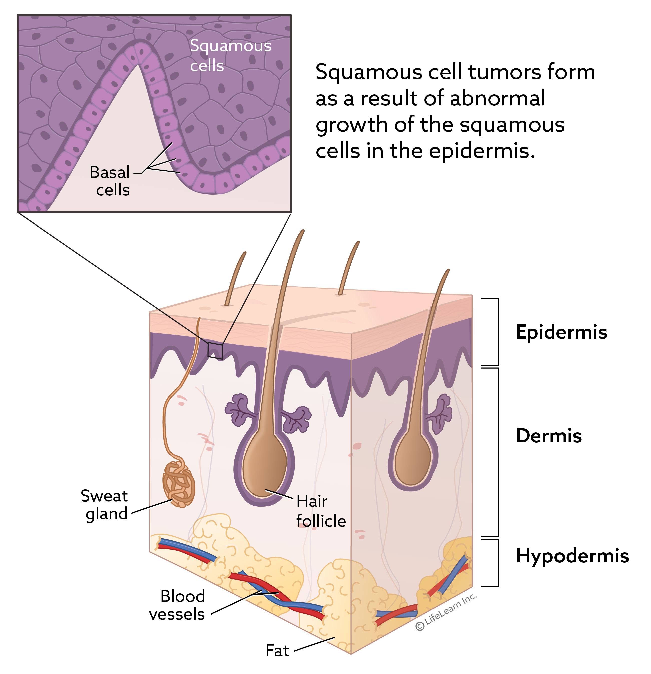 skin_layers_squamous_cell_2018