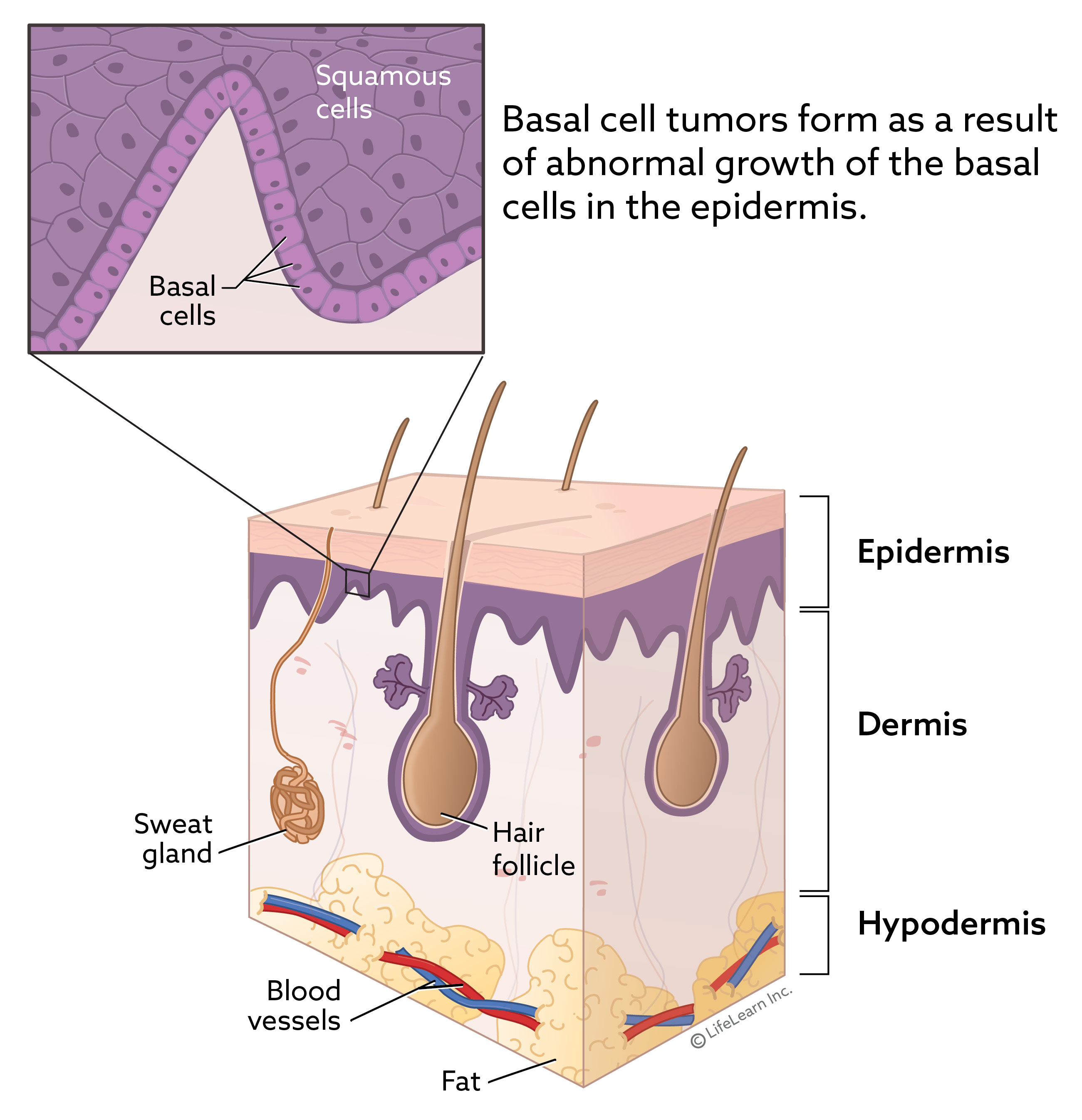 skin_layers_basalcell_2018