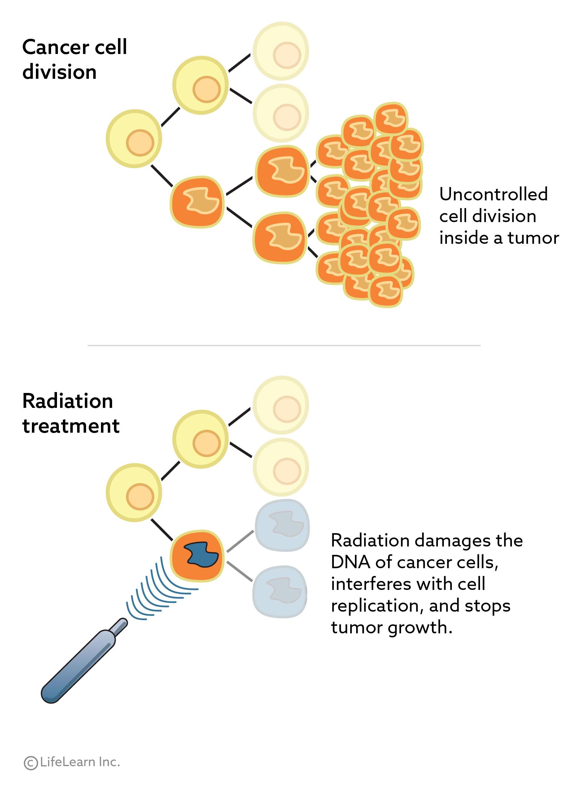 radiation_treatment_2018