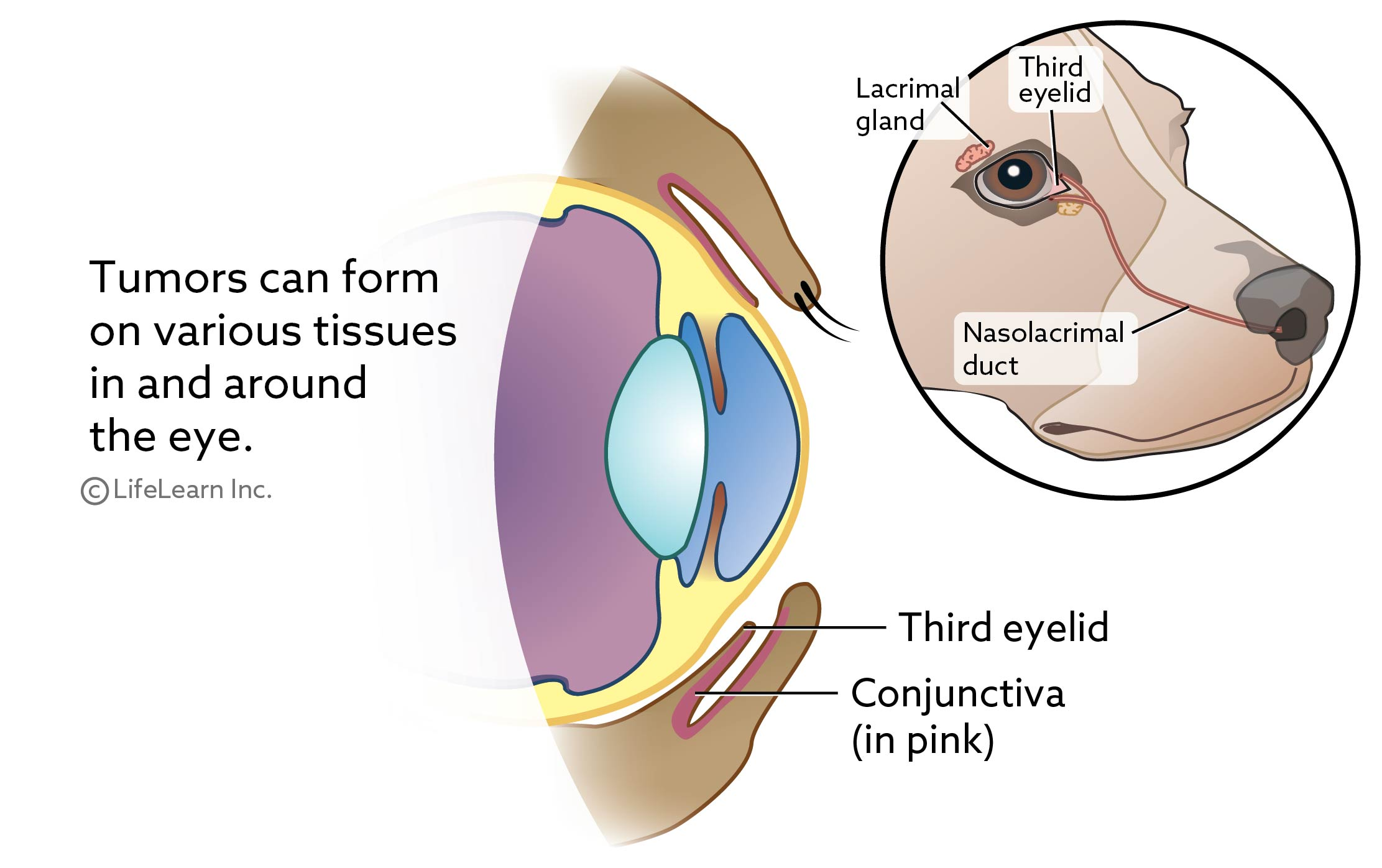 eye_tumors_cross_section1_2018-01