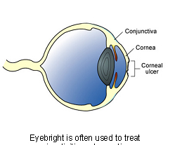 eyebright-2