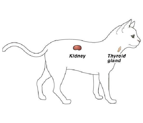 hypertension-2