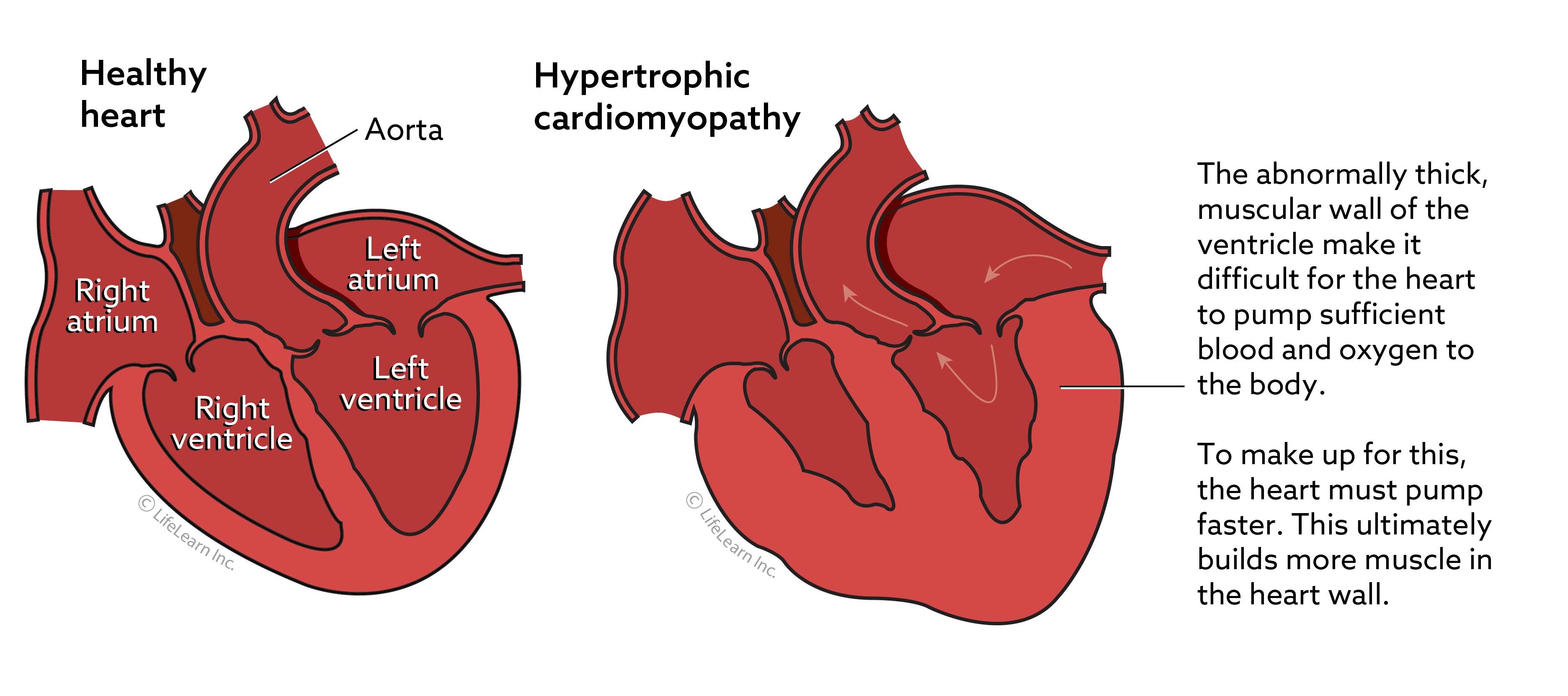 heart_disease_healthyheart_hypertrophic_cardiomyopathy