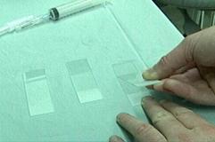 cytology_-_fna_samples-2